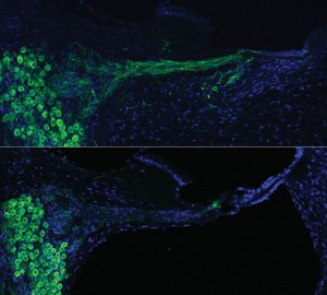 (From Wired): Cochlear nerve neurons (green) before (bottom) and after (top) gene therapy in the same animal. UNSW Australia Translational Neuroscience Facility, J. Pinyon and G. Housle